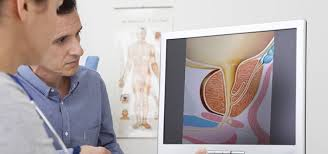 how-choose-best-nyc-urologist-01