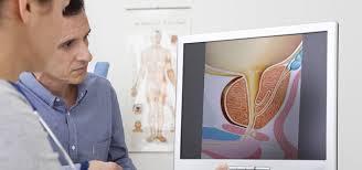 how-choose-best-nyc-urologist-01