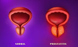 diagram-of-prostatitis-top-specialists-nyc-02