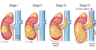 kidney-cancer-stages-info-02