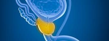 urologist-benign-prostate-hyperplasia-BPH-info-01
