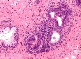 Bacteria cause of Prostatitis