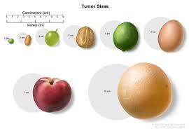 Testicular Cancer Urologist - Treatment Info