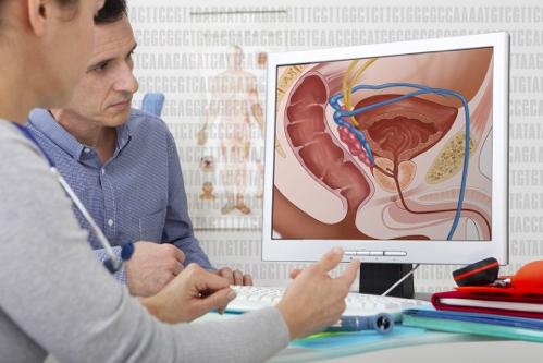 Best NYC Urologist   Prostate Cancer